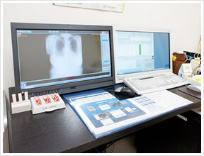 画像診断装置(左)と電子カルテ(右)